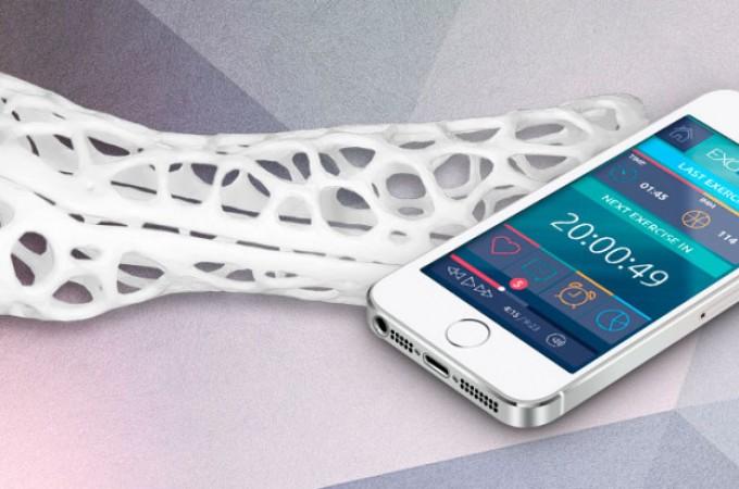 Exovite, rehabilitación muscular con tecnologías 3D