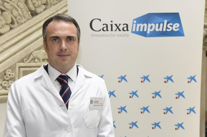 Un proyecto de biotecnología del CIMA, respaldado por CaixaImpulse
