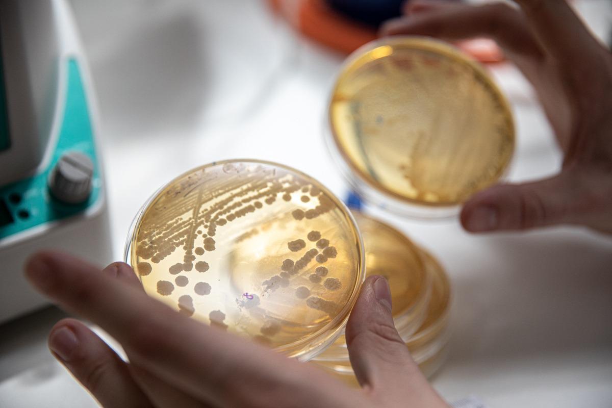 MOA diseña medios de cultivos y adapta microorganismos para convertir subproductos en proteína.
